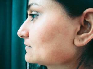 Hårfjerning ansikt med laser - etter behandling