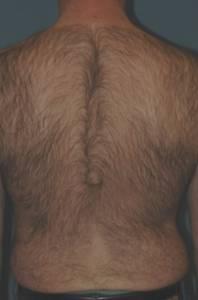 Hårfjerning rygg med laser - før behandling