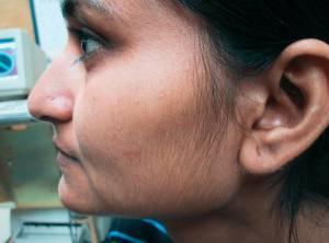 Hårfjerning ansikt med laser - før behandling