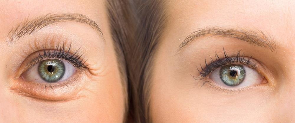 Smilerynke før og etter med botox