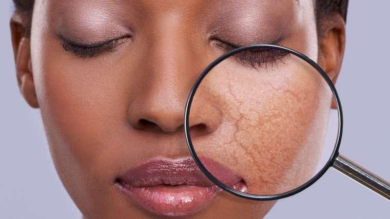 Hud og Laser