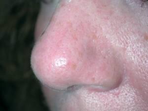 Rosacea - Etter behandling