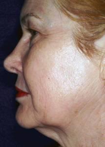 Hudoppstramming med laser - etter behandling