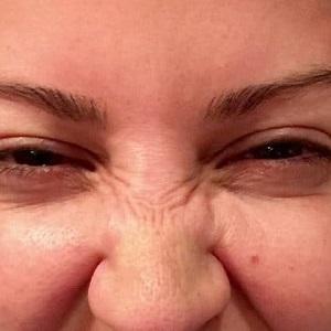 Fjerne neserynker med botox