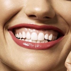 Gummi smile