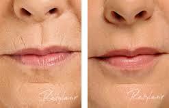 Røykelinjer før og etter med botox