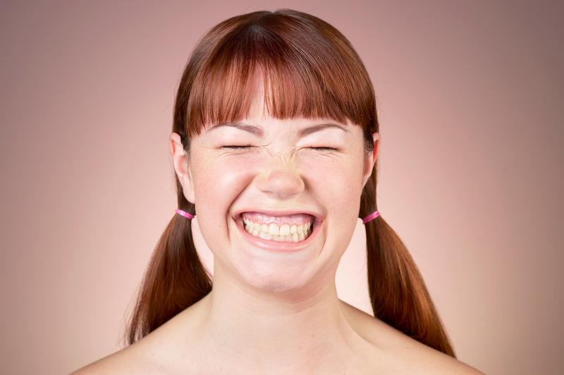 Fjerning av tannkjøttsmil med botox
