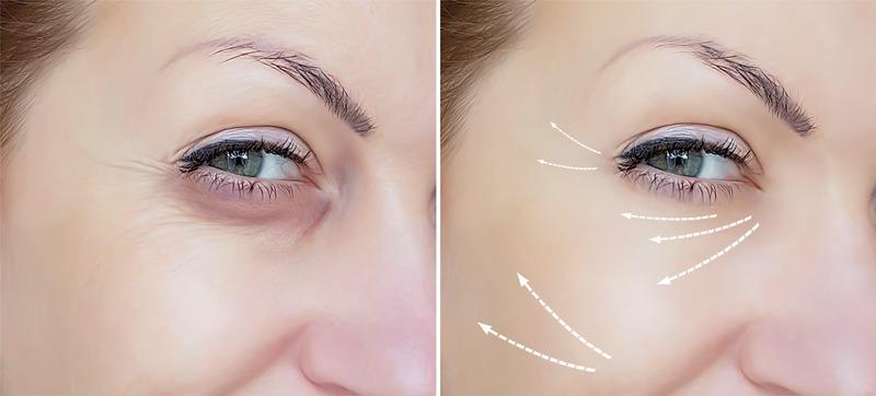 Fjerne Smilerynke med Botox