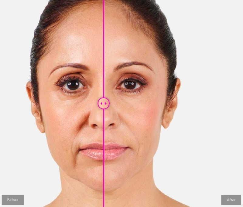Surmunn behandling med botox